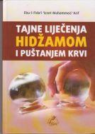 Tajne lijecenja Hidzamom i pustanjem krvi